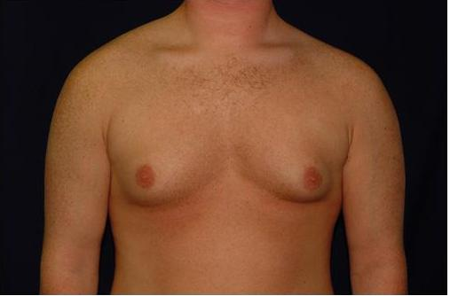 gynecomastia surgery before after. With severe gynecomastia from